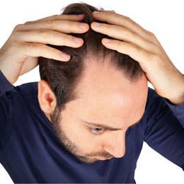 Anti-Haarausfall-2